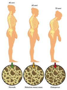aging osteoporotic bones