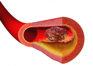 A thrombus totally blocks (occludes) blood flow from activated coagulation factors