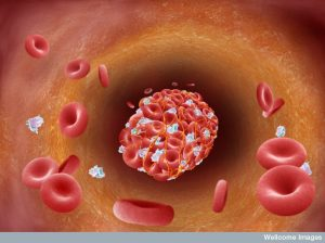 Blood clot (thrmbus) forming in arterial plaque. Credit: Annie Cavanagh. Wellcome Images images@wellcome.ac.uk http://images.wellcome.ac.uk Digital artwork illustrating a blood clot forming in a blood vessel. Atherosclerosis is a condition in which an artery wall thickens as the result of a build-up of fatty materials such as cholesterol. Suffering with atherosclerotic disease, plaque deposits form along the lining of the artery and grow to cause a narrowing of the vessel which may cause a heart attack or stroke. The plaque can rupture causing a blood clot which forms at the site of the ruptured plaque the clot can completely or partially occlude the blood flow at that point. In arteries, the primary clotting mechanism depends on platelets Digital artwork/Computer graphic Published: - Copyrighted work available under Creative Commons by-nc-nd 2.0 UK, see http://images.wellcome.ac.uk/indexplus/page/Prices.html