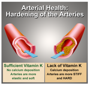 arteries-and-vitamin-k