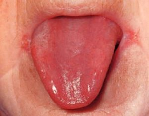 glossitis (re tongue) and angular cheilitis are symptoms of iron deficiency