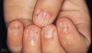 brittle nails are a symptom of iron deficiency