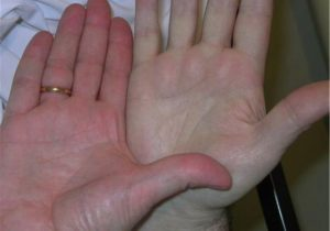 pallor of anemia compared to normally perfused hand