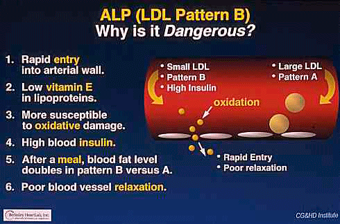 Pattern A vs Pattern B LDL risk